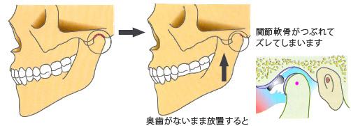 奥歯がないまま放置すると、関節軟骨がつぶれてズレてしまいます
